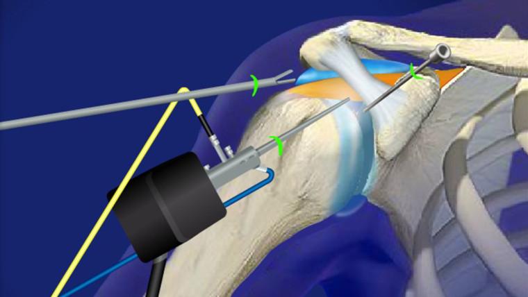 Артроскопия руки и запястья