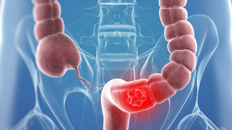 Рак толстой кишки — самая частая опухоль в Испании и вторая причина смертностиотонкологических заболеваний