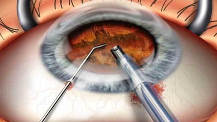 Ухудшение зрения после удаления катаракты