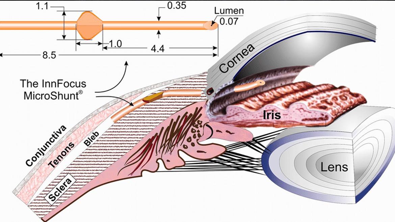 Nuevas posibilidades para los pacientes con glaucoma