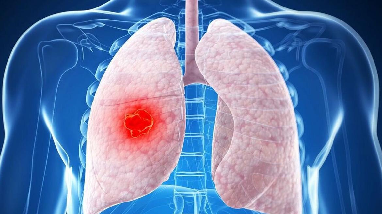 Рак легких: диагностика и лечение