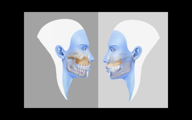Мономаксиллярная ортогнатическая хирургия: применение и методы