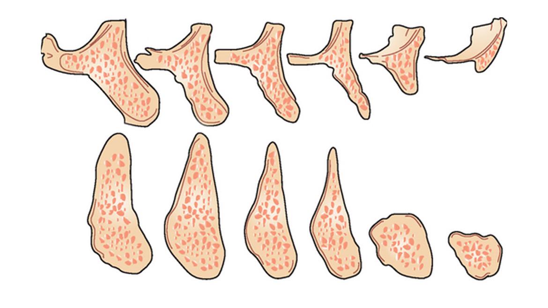 Современные решения при резорбции кости