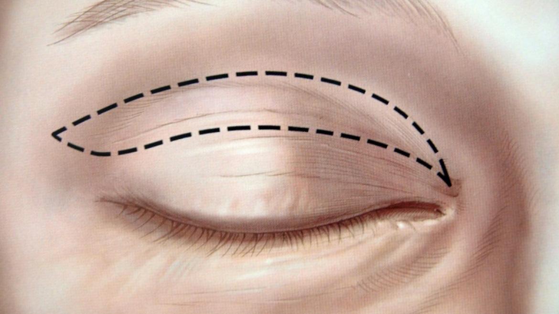 Доктор Мартинес Грау президент Испанского общества глазной и орбитальной пластической хирургии