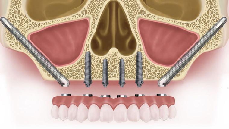 Скуловые и птеригоидные имплантаты
