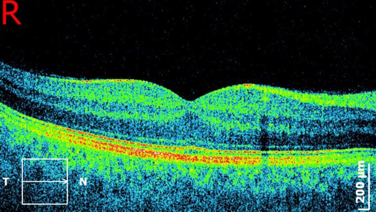 Innovación en la tomografía de coherencia óptica