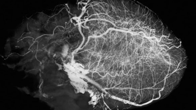 Компьютерная томографическая ангиография сердца