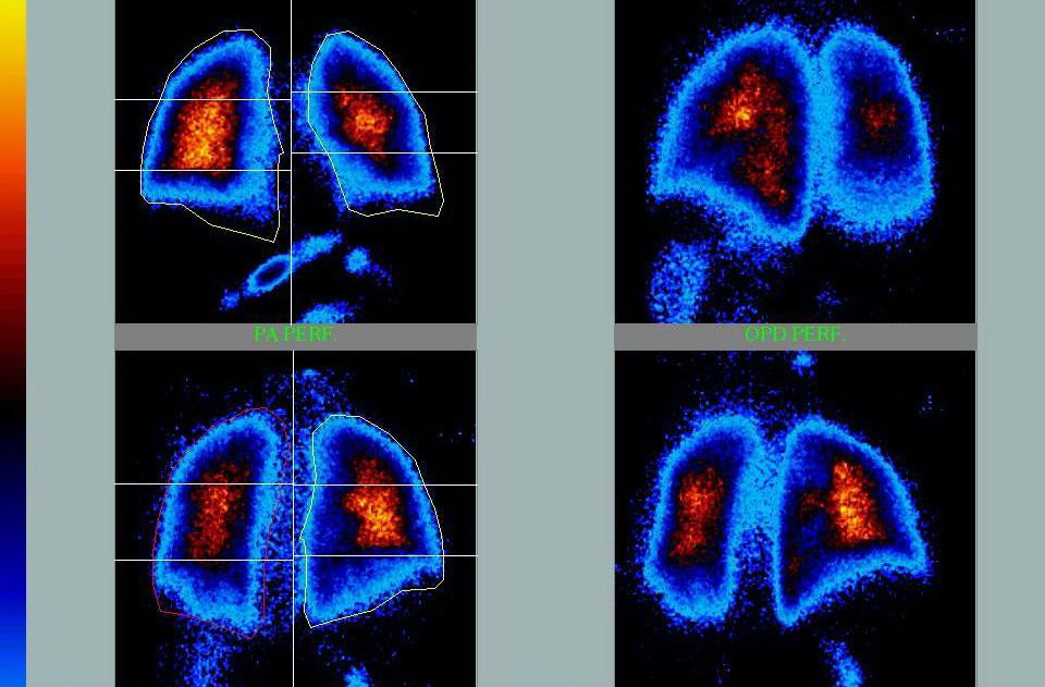 Ученые Испании запатентовали новый способ лечения болезней легких