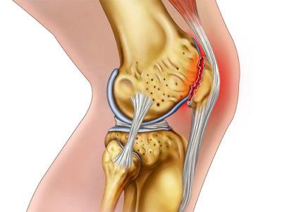 Травмированный мениск в коленном суставе можно заменить имплантом
