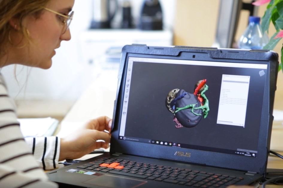 С помощью 3D-планирования хирурги успешно проперировали аномалию «плод в плоде»