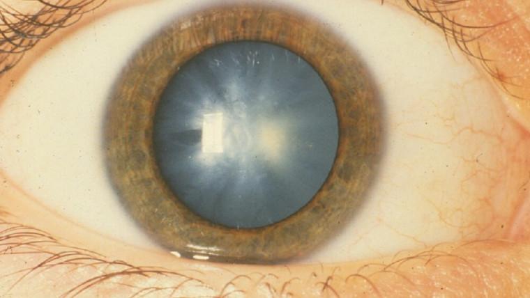 Врожденная катаракта у 40- летнего мужчины