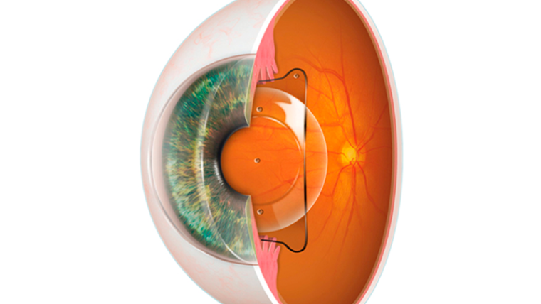 Lentes intraoculares ICL