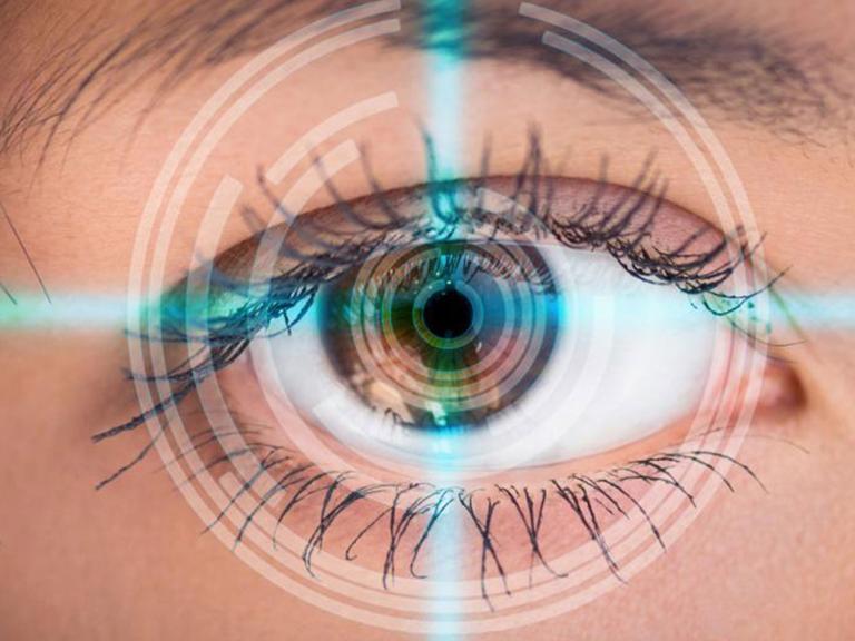 Иридотомия – Лазерное лечение глаукомы