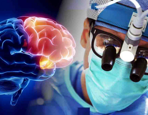 What is brain biopsy