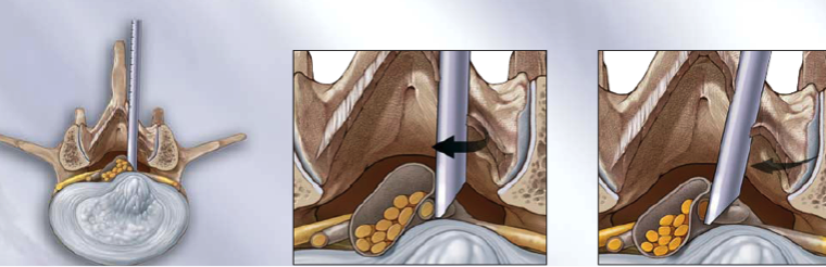What is endoscopic lumbar surgery?