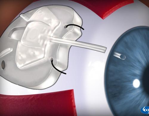 Glaucoma drainage device implant surgery