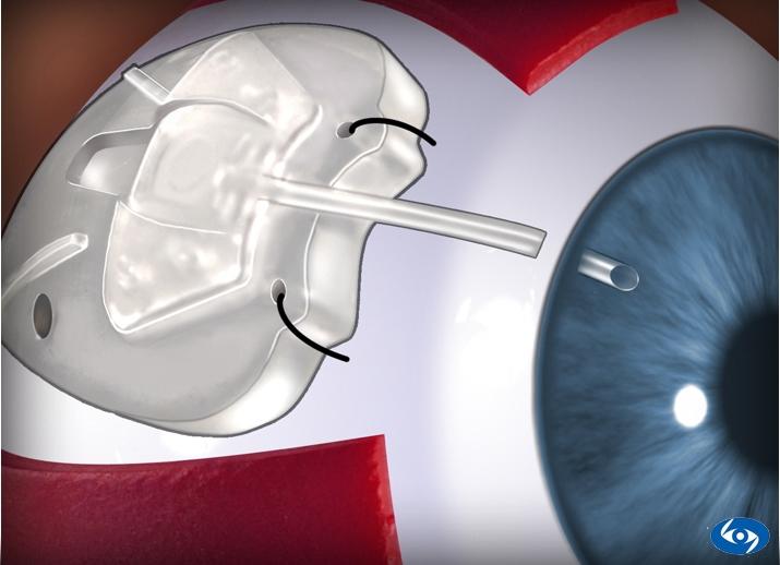 Имплантация дренажных устройств при глаукоме