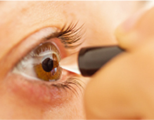 The importance of measuring the thickness of the cornea: pachymetry
